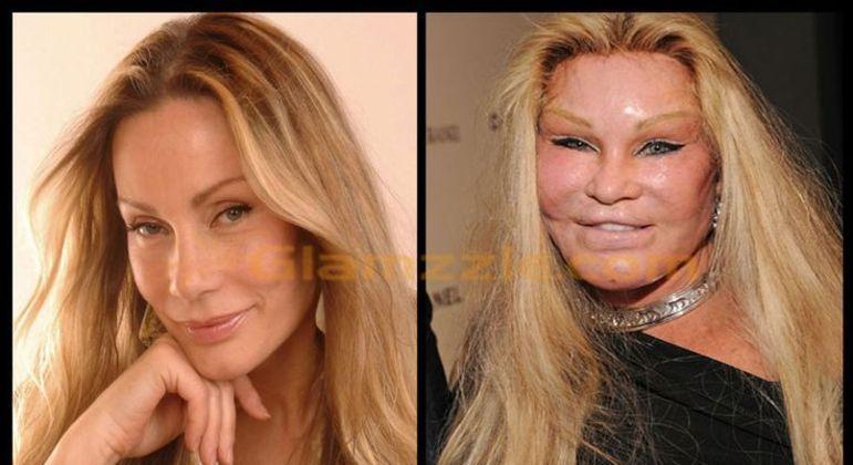 Jocelyn antes e depois das cirurgias