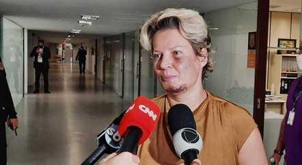 Joice Hasselmann presta depoimento à polícia sobre ataque - Prisma - R7 R7  Planalto