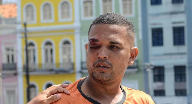 Jonas Correia perdeu a visão do olho direito ao ser atingido durante ação policial no Recife (PE)