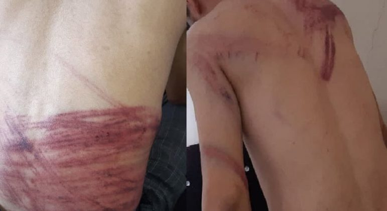 Taqi Daryabi e Nematullah Naqdi ficaram com marcas profundas por todo o corpo