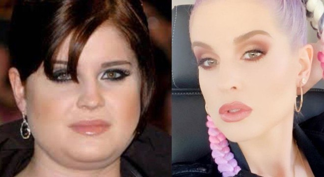 Kelly Osbourne , antes e depois