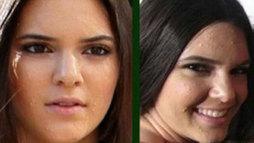 Kendall Jenner posta foto para relembrar problema com acne na adolescência ()