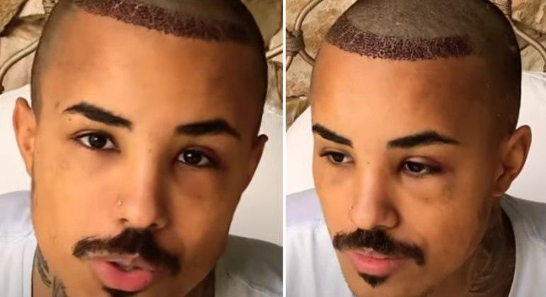 Na luta contra a calvície, Livinho implantou 1400 fios de cabelo na parte frontal da cabeça