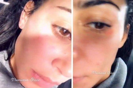 Kim Kardashian mostrou efeitos da psoríase no rosto