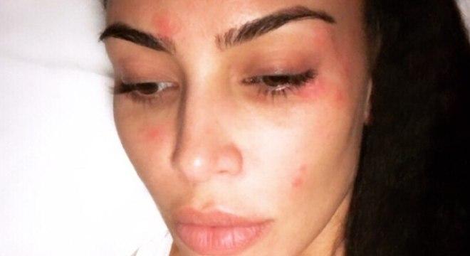 Kim Kardashian mostra seu rosto durante uma manifestação da psoríase