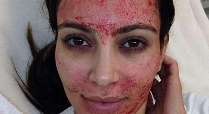 Kim Kardashian mostrou o tratamento com sangue