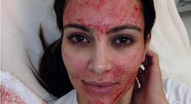 Kim Kardashian é uma das celebridades que já utilizou a técnica