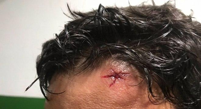 Jogador sofreu ferimento na cabeça após invasão de vestiário no Carioca