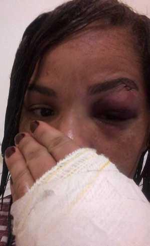 Apesar das agressões, ela não fez o registro na delegacia