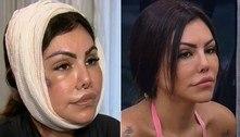 Como erro em harmonização facial deformou o rosto de Liziane?