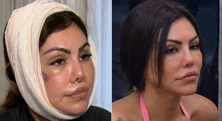 Liziane Gutierrez se recuperando de operação no rosto e após entrar em 'A Fazenda 13'