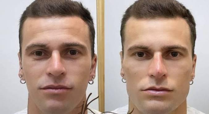 Lucas Lima, de 30 anos, passou por uma harmonização facial e aplicação de botox