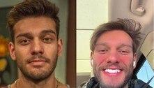 Reverter harmonização facial, como fez Lucas Lucco, pode dar alergia