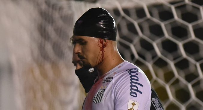 Lucas Veríssimo teve um corte profundo na cabeça. Mas seguiu jogando. Muito bem