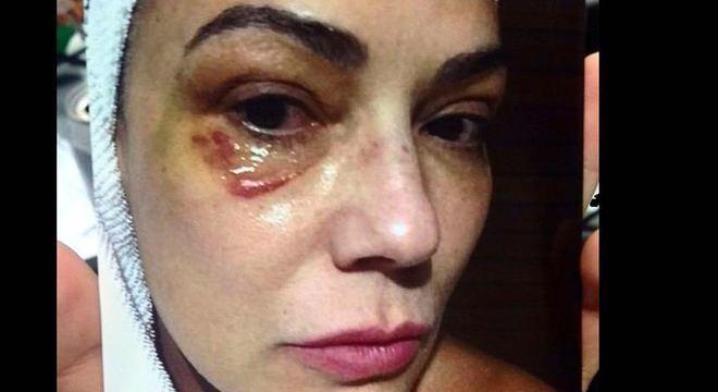 """""""Sempre acreditei na Justiça"""", disse a atriz após a Justiça manter a condenação"""
