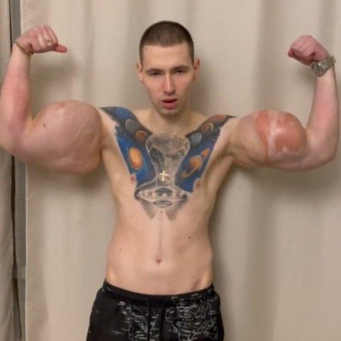 Lutador admitiu que não adquiriu músculos de forma natural