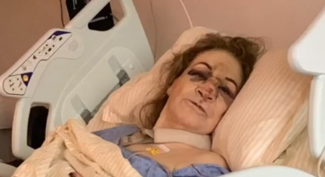 Mãe de Sônia Abrão sofreu queda grave após escorregar em tapete