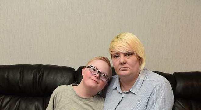 Mãe falou sobre o que aconteceu com seu menino com Síndrome de Down