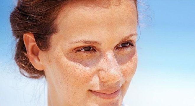 Manchas brancas na pele causadas pelo sol
