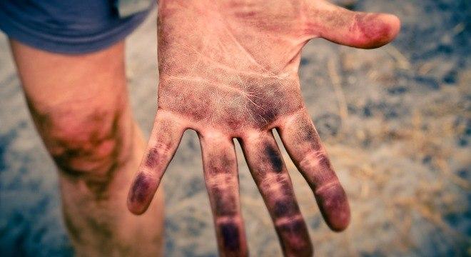 A pele é o sistema mais elaborado que temos no nosso corpo