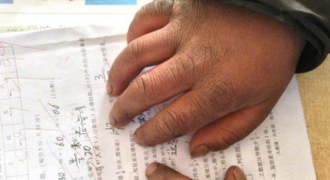 Foto mostra a mão suja e inchada de Wang e, sob ela, a nota 99 em um teste