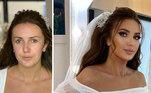 Arber registra suas noivas antes e depois