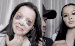 Na época, a cantora chocou ao mostrar o rosto completamente roxo, resultado do pós-operatório