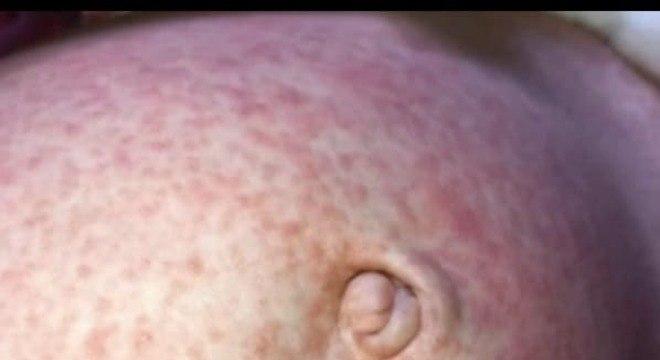 Marcas do sarampo na barriga do menino