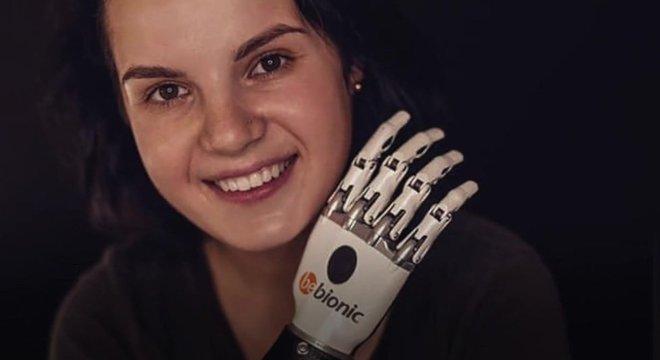 Margarita recebeu doações para adquirir uma prótese biônica