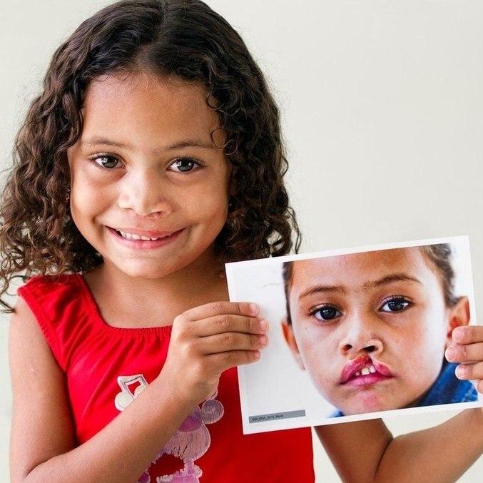 Maria, uma das crianças atendidas pela Operação Sorriso