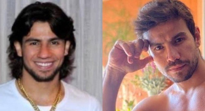 Mariano antes e depois da segunda cirurgia