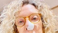 Marília Gabriela descobre que 'espinha' era na verdade um câncer