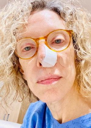 Marília Gabriela após cirurgia no nariz