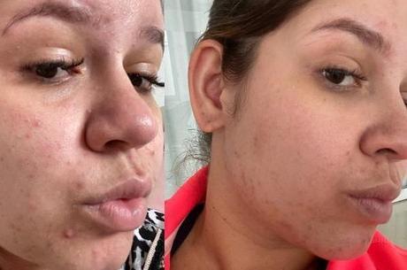 Marília Mendonça mostra antes e depois de tratamento de pele
