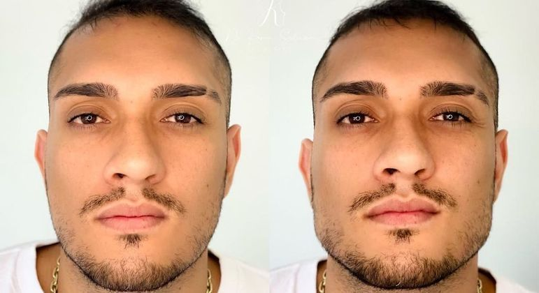 MC Bin Laden mostrou o antes e depois de fazer uma harmonização facial
