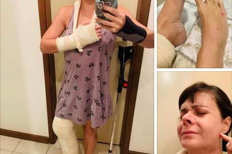 Médica fraturou o joelho e ficou desacordada