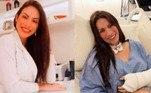 Mais de dez dias após ser atacada por uma cobra em uma cachoeira na cidade de Nobres, no Mato Grosso, a médica Dieynne Saugo comemora em suas redes sociais cada cirurgia para reparar os danos do ataque.
