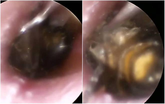 Um médico no Vietnã compartilhou imagens bizarras de uma abelha 'cavando' dentro do ouvido de um paciente. As cenas, registradas por uma câmera médica especial, surpreenderam e enojaram os internauta*Estagiário doR7, com supervisão de Filipe Siqueira