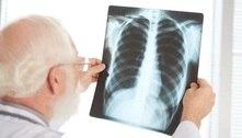 Mais de 3,5 milhões podem ter fibrose pulmonar pós-covid