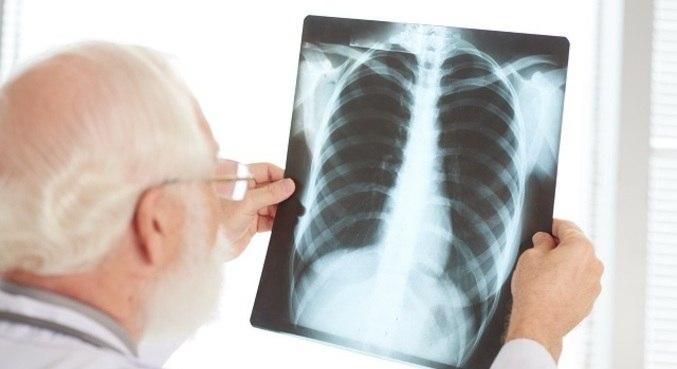 Tratamento usa células do corpo para curar fibrose pulmonar da covid-19