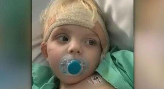 Menino de dois anos ficou surdo de um ouvido após cair do sofá
