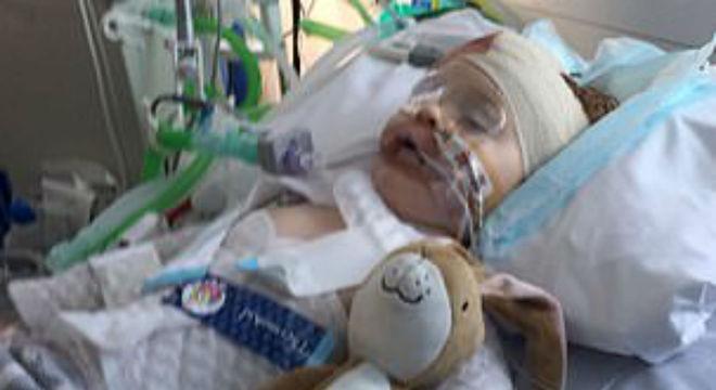 Menino de dois anos que ficou em coma após cair do sofá