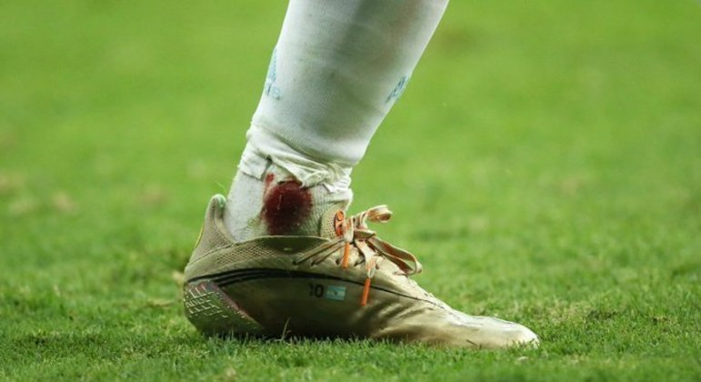 O tornozelo esquerdo de Messi, sangrando. Depois de entrada violenta do colombiano Fabra