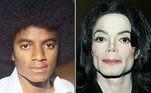 A mudança de aparência de Michael Jackson foi um dos aspectos mais polêmicos de sua vida. A lista de cirurgias plásticas que o rei do pop fez ao longo da vida é longa. Começa com uma rinoplastia - realizada nos anos 70, quando tinha 19 anos - e inclui enchimento nas bochechas, implantes no queixo, botox e mudança no formato dos lábios. De acordo com pessoas próximas ao cantor, essa saga pela mudança de fisionomia foi motivada pelo desejo que Michael tinha de eliminar as semelhanças com seu pai,o empresário Joseph Joe Jackson, que abusou dele na infância