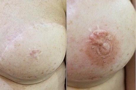 Processo reconstrói aréolas de mulheres mastectomizadas