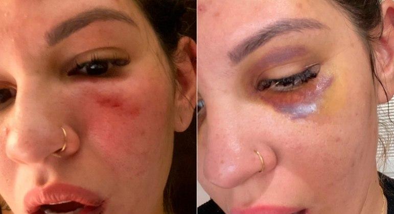 Milena Bemfica publicou seu rosto inchado, pelos oito socos, nas redes sociais
