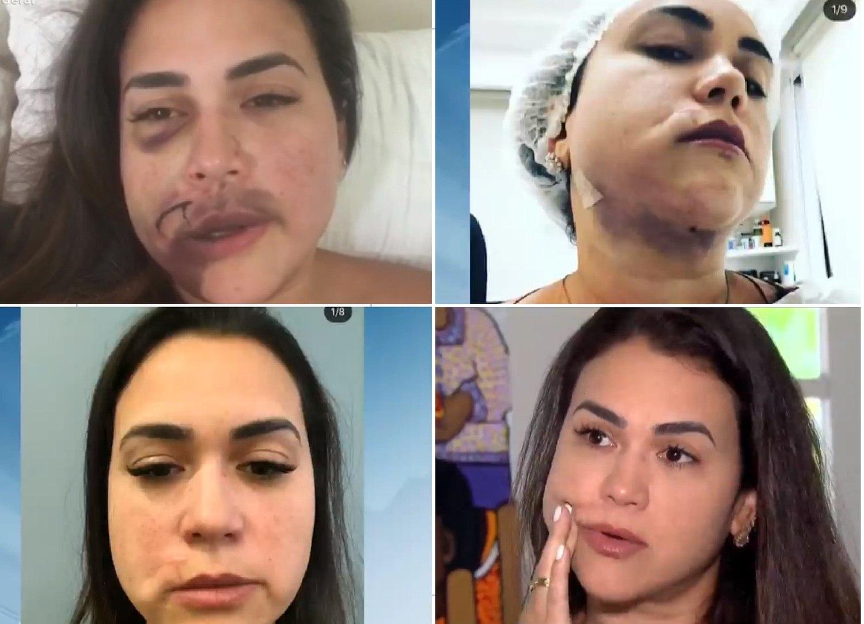 Milka Borges foi agredida dentro de um restaurante no Jockey Clube de SP