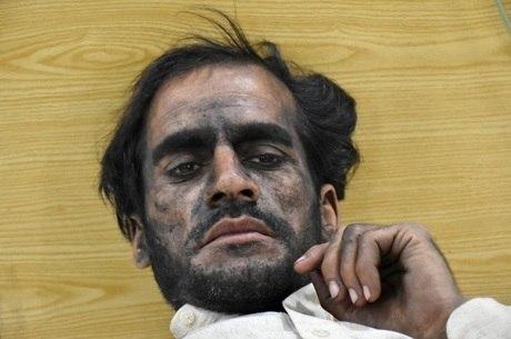 Sobrevivente da explosão descansa em hospital de Quetta