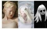 Xueli Abbing foi abandonada na porta de um orfanato na China quando ainda era apenas um bebê, há 16 anos, por ser diferente das outras crianças. Elas nasceu com albinismo, uma condição genética caracterizada pela falta de melanina, pigmento que dá cor à pele, aos cabelos e aos olhos