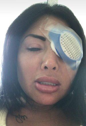 Como os implantes pressionaram demais seus nervos óticos, sua visão foi ficando embaçada até o ponto que ela foi enxergando cada vez menos
